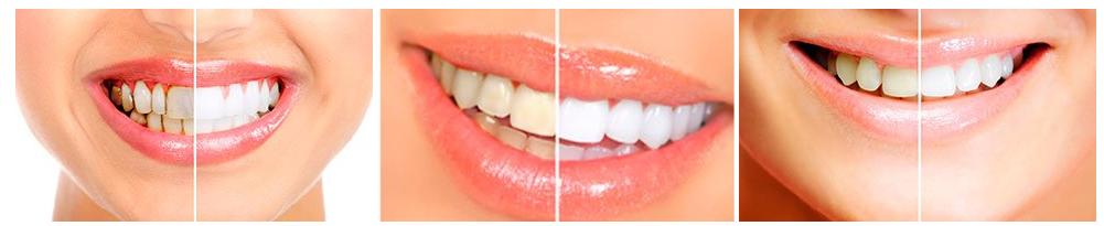 Ako funguje bielenie zubov