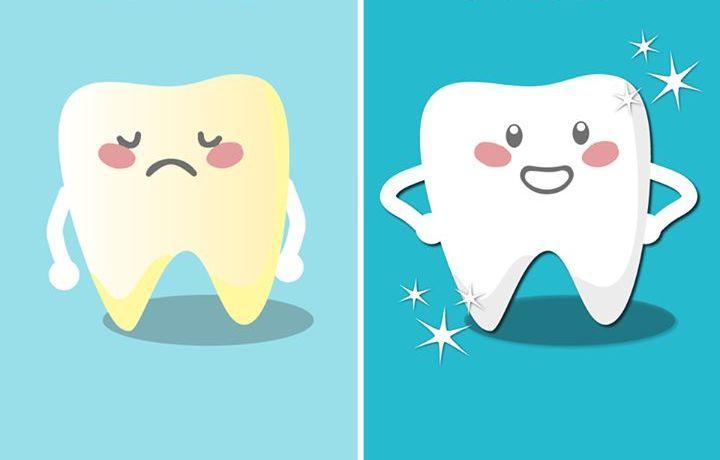Ako získať dokonalé zuby?