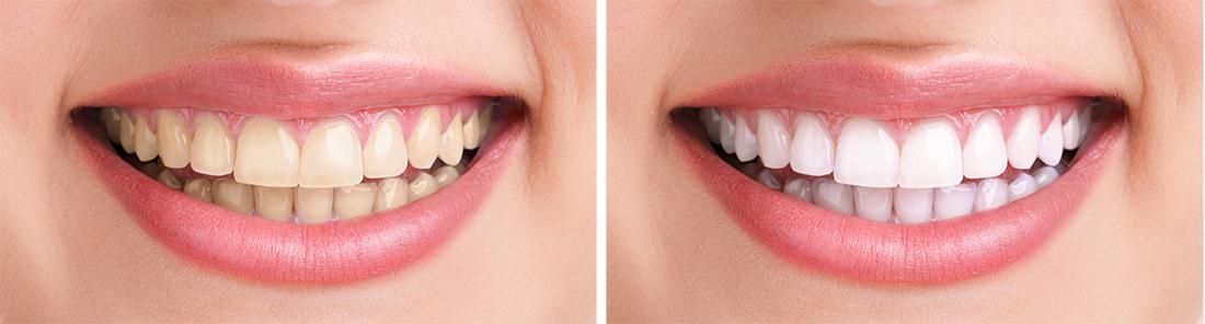Bezpečnosť bielenia zubov