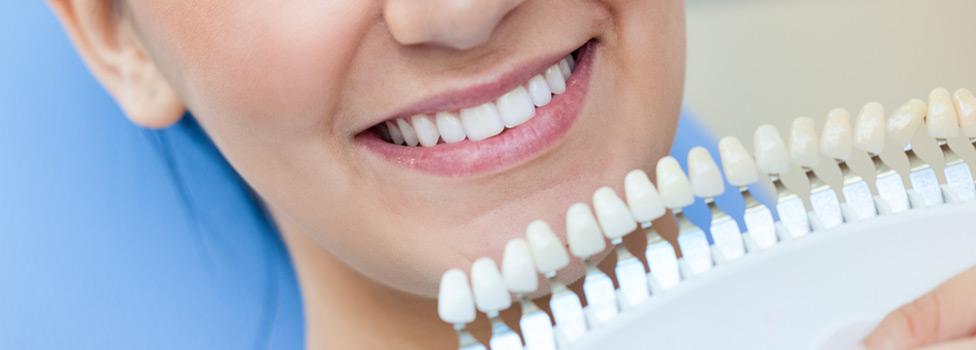 Fakty o bielení zubov