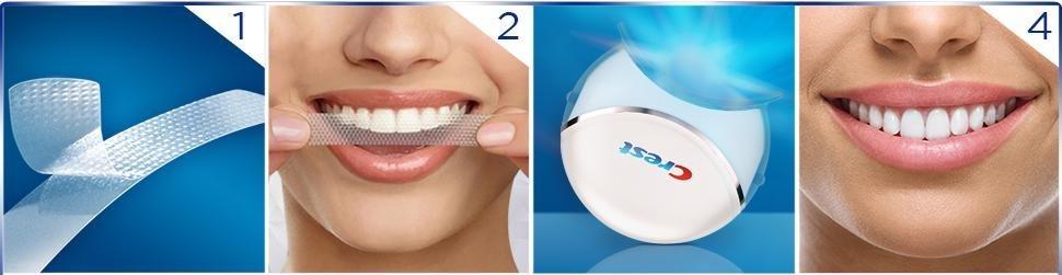 Svojpomocné bielenie zubov